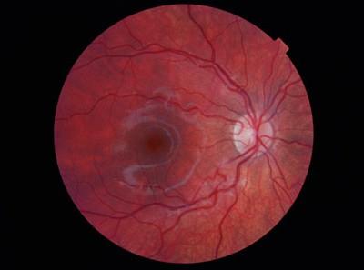digital-retina-photograph