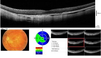 retinal-map-2